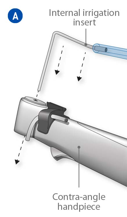 Introduce the internal irrigation insert in the contra-angle handpiece